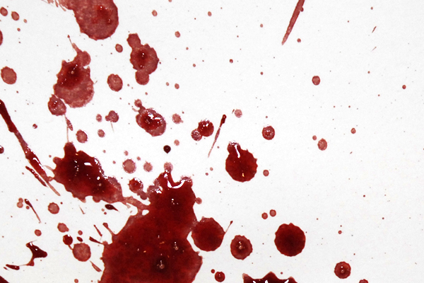 Bloodstain Example - Expirated Blood